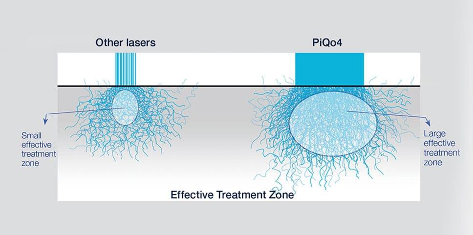 PiQ04-laser-technology