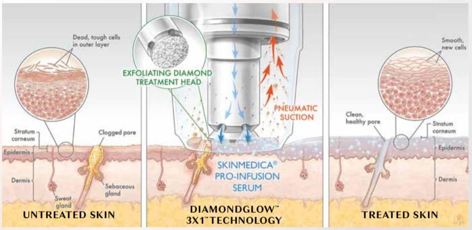diamondglow-pembroke-pines
