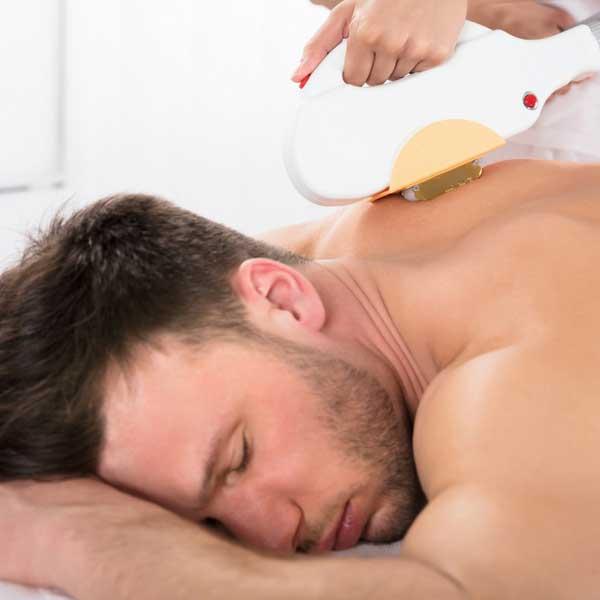 laser hair removal for men in davie