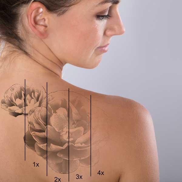 tattoo-removal-south-florida-weston